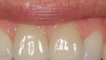 Permalink auf:Parodontologie